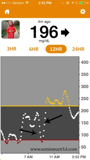 arrows on CGM