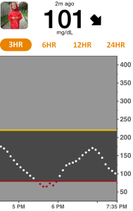 Dexcom Share data on follower phone