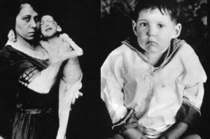 L: a child with diabetes on the starvation diet, R: same child after treatment with insulin (photo credit: trumanlibrary.org)